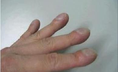 """医疗考试重点:""""杵状指""""常见考点总结"""